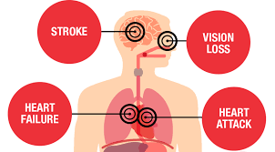 therapeutic actions of drugs affecting blood pressure
